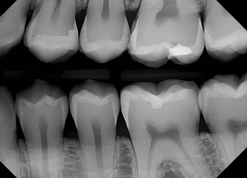 dental xray image