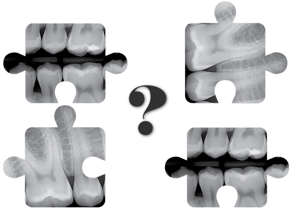 Dental Imaging integration with Patterson