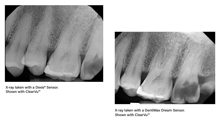 X-ray taken with a Dexis* Sensor shown with ClearVu compared to an X-ray taken with a DentiMax Dream Sensor shown with ClearVu.
